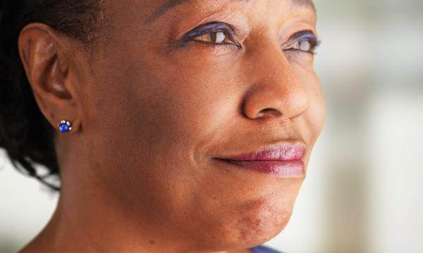 Postmenopausal and Living with Breast Cancer You May Be Able to Skip Chemotherapy